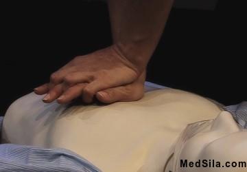 Расположение рук при СЛР