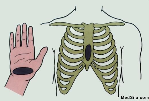 Слева – область нижней руки, которая должна давить на грудную клетку. Справа - область груди, куда необходимо давить при СЛР.